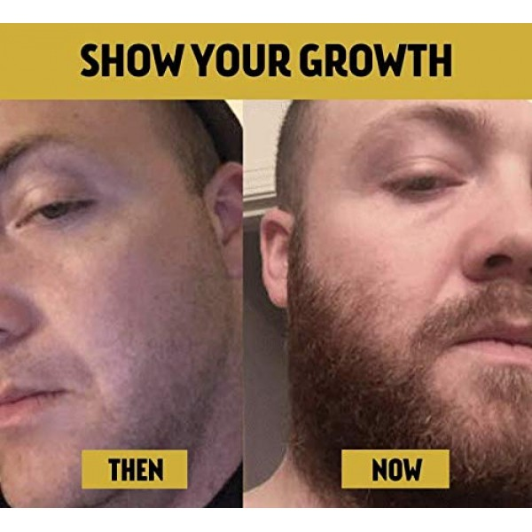 Advanced Beard Growth Kit | The Beard Club | Growth Vitamins, Bea...