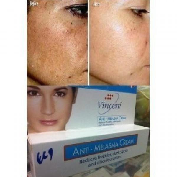 Best Melasma Treatment Cream Reduces Age Spots, Helps Repair Sun ...